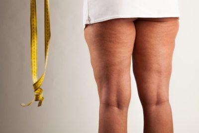 5 traitements efficaces contre la cellulite